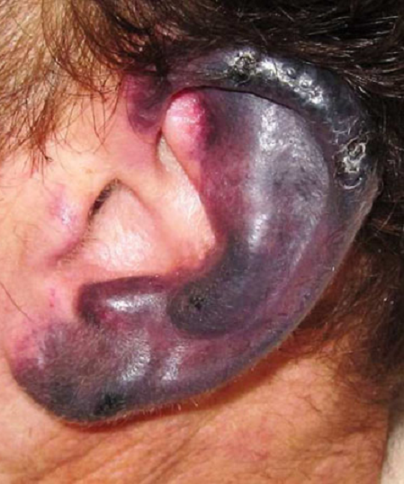 necrotic lesions on ear